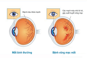 thumbnail-benh-vong-mac-dai-thao-duong