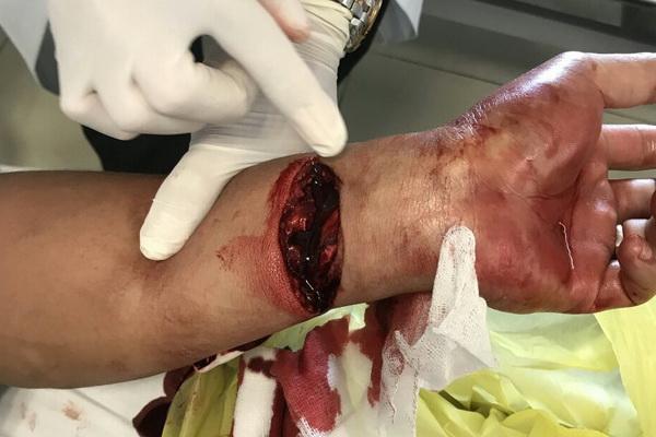 Hình 1. Cổ tay bệnh nhân bị đứt sâu gần như hoàn toàn