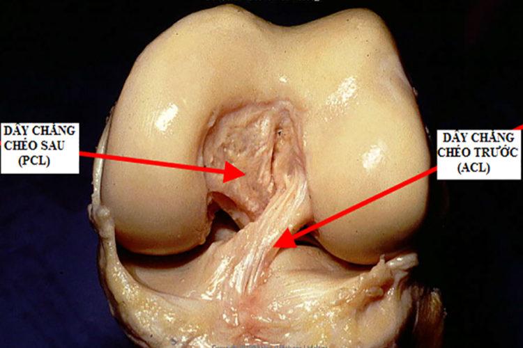 Giải phẫu dây chằng chéo của khớp gối
