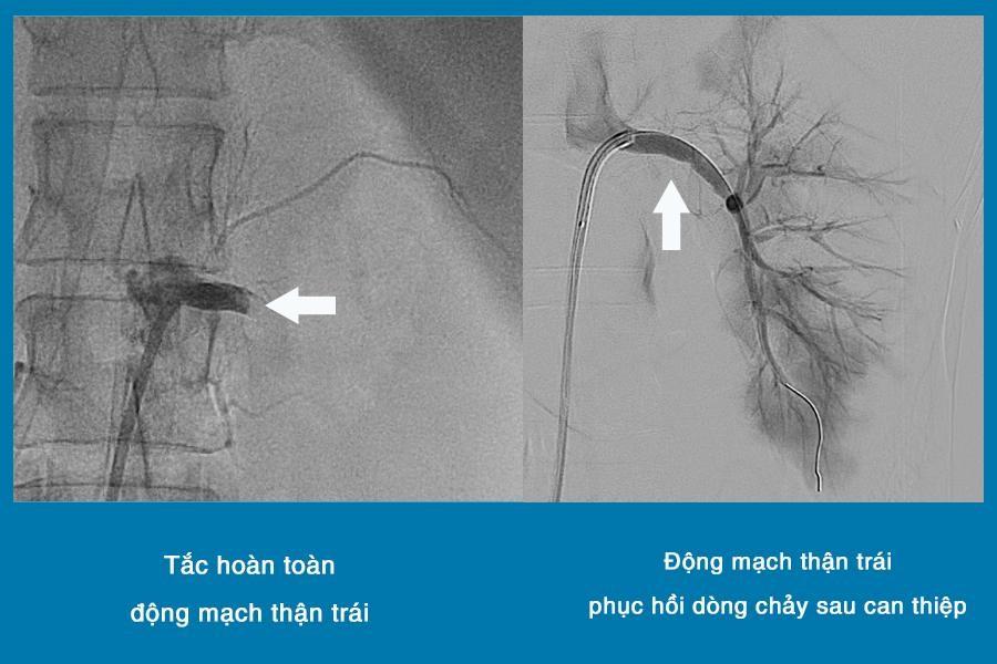 Cấp cứu tai nạn vỡ nội tạng không cần phẫu thuật mở bụng
